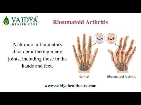 Arthritis Treatment Services in Ahmedabad