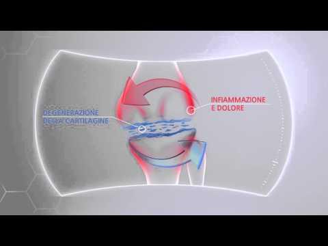 Testimonianza alla sostituzione del ginocchio