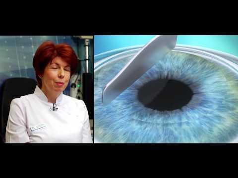 Császármetszés látáskárosodás esetén