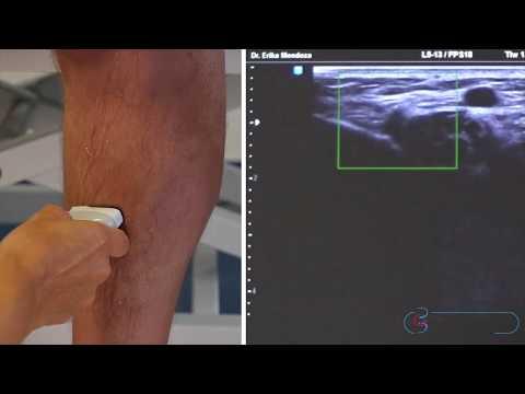 Die Behandlung der Flecke auf der Haut bei warikose