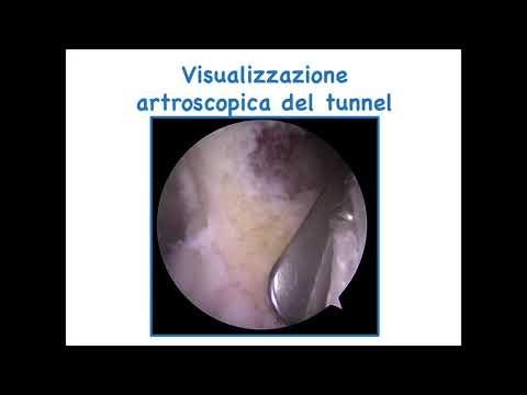 Fissazione femorale nella ricostruzione del legamento crociato anteriore