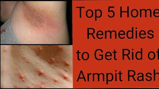 Top 5 Home Remedies to Get Rid of an Armpit Rash/पसीना,rashes,oder problem/smalllittlethings