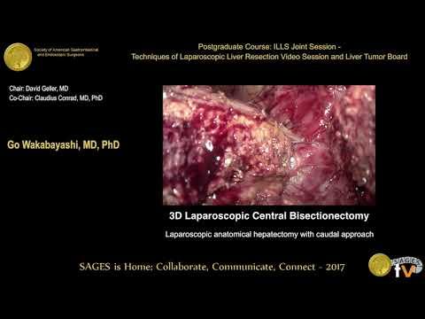 Hepatektomia laparoskopowa z podejścia od płata ogoniastego (caudal approach)
