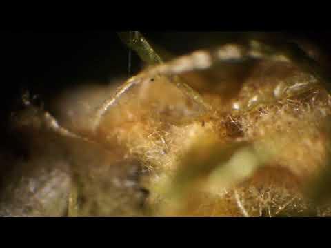 Лишайники. Торфяной мох-сфагнум  под микроскопом.