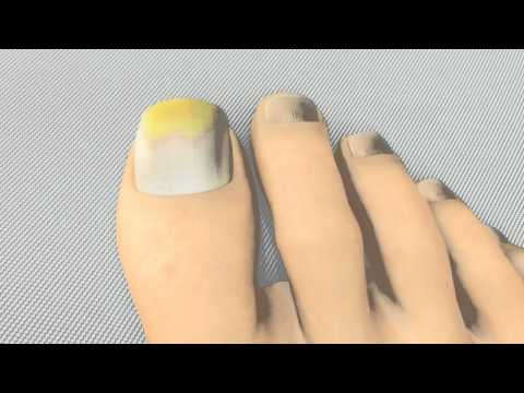 Die Merkmale gribka des Nagels des Beines