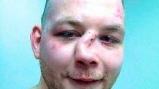 Драка Тхэквондо против Кикбоксера результат сломанный нос