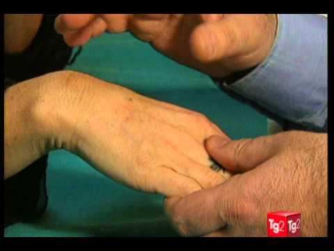 Eczema di ghiandole mammarie e gravidanza