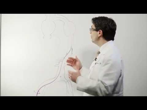 Eliminazione di ernia di metodi di disco intervertebrali