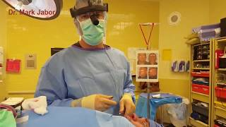 Jabor - Rhinoplasty nasal implant (nose surgery) in El Paso