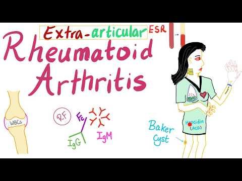 A rheumatoid arthritis közös leírása
