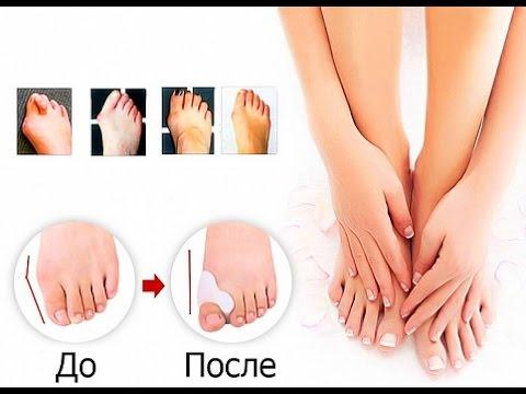 Вальгусной деформации первого пальца стопы лечение без операции