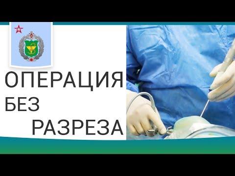 🔬 Этапы артроскопических операций и реабилитация после. Артроскопические операции. 12+