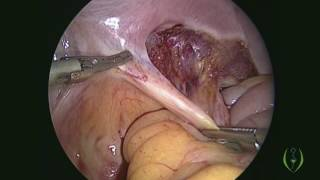 Laparoscopic Radical Hysterectomy with Pelvic Lymph Node Dissection