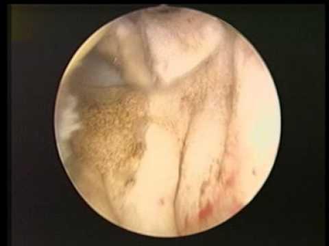 Cyberknife o intervento chirurgico alla prostata