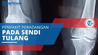 Ankylosing Spondylitis, Penyakit Peradangan pada Sendi yang Sering Mengenai Sendi Tulang Belakang