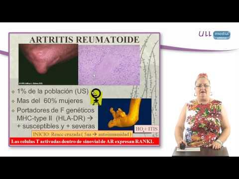 Artroza tratamentului articulației genunchiului cu teraflex