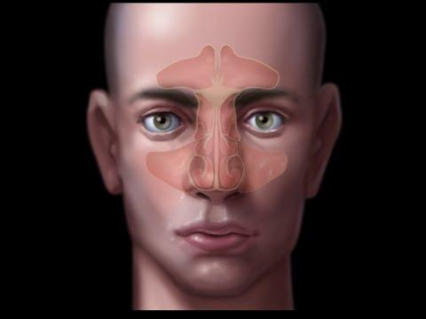 Papilloma seno nasale