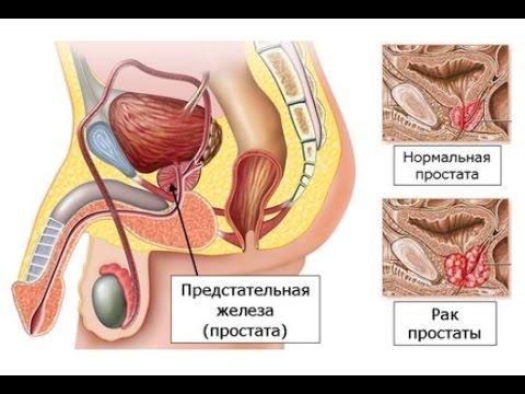 Физиотерапия для восстановления тканей простаты