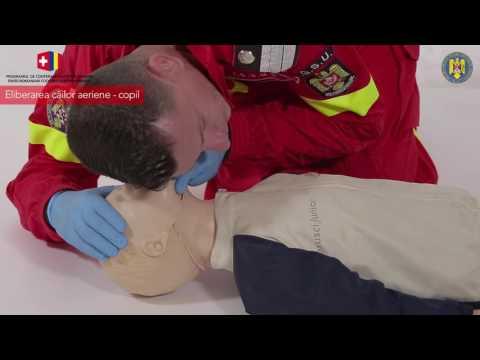 Tratamentul hipertensiunii arteriale copiilor