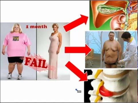 Комплекс упражнений для похудения живота и боков с фото