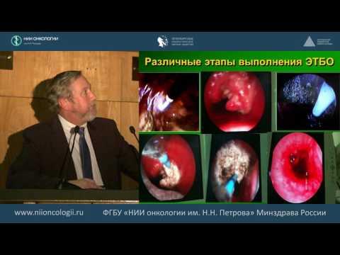 Лечение опухолевых поражений бронхов и трахеи с использованием эндотрахеобронхиальных операций