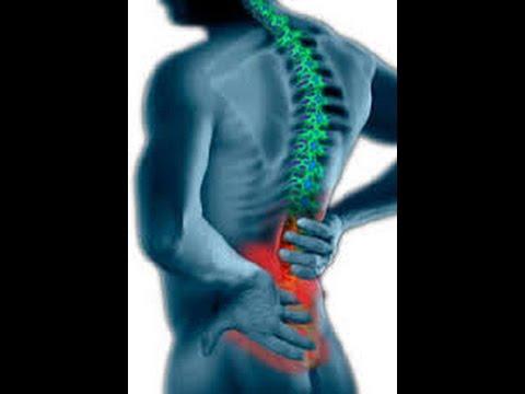 Ob es möglich ist, Schmerzen im unteren Rücken auf x-ray zu identifizieren