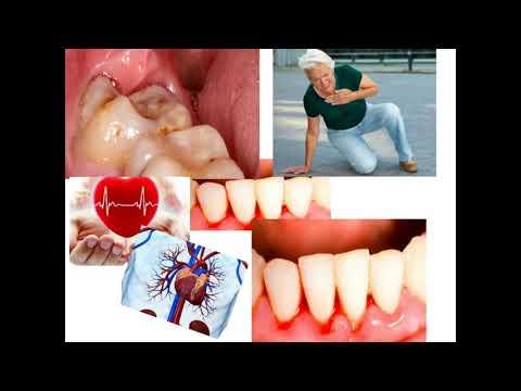 Лечение простата санатории