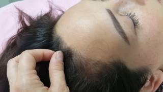 Scalp Microblading - Healed 1st Session