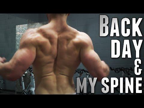 Che guarirà una curvatura di spina dorsale