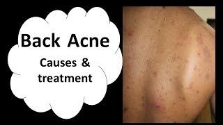 Back acne | Truncal acne | Treatment | Dr. Aanchal Panth