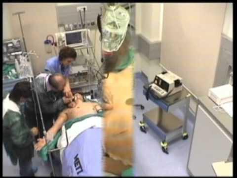 Cardiomagnil nel trattamento dellipertensione