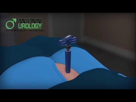 Tre iniezioni di prostata