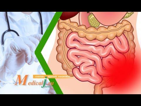Острая кишечная непроходимость: причины, симптомы и лечение