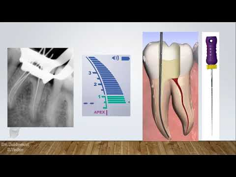 Step by step procedure of BMP with rotary files in a molar tooth( in Hindi)