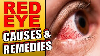 Why Are My Eyes Always Red or Bloodshot | How To Get Rid of Bloodshot Eyes Naturally