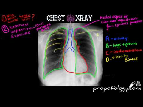 LEARN to Read a Chest Xray in 5 minutes! - YouTube