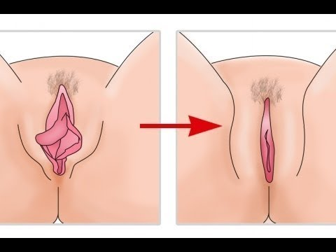 What does a normal vagina look like, anyway