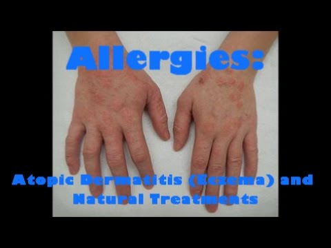 Eczema seco de pele em palmas