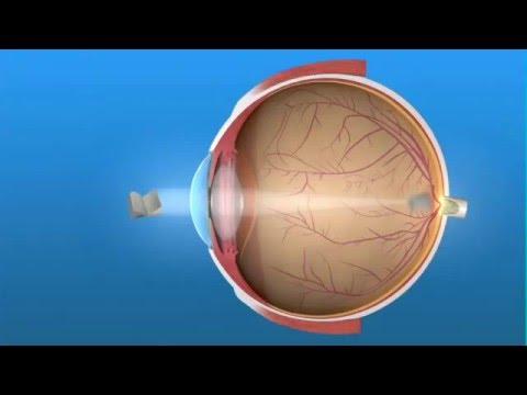 Визион в перми коррекции зрения