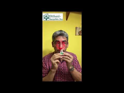 Boka ízületi gyulladás 3 fokos kezelés