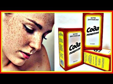 Как защищать кожу от пигментных пятен