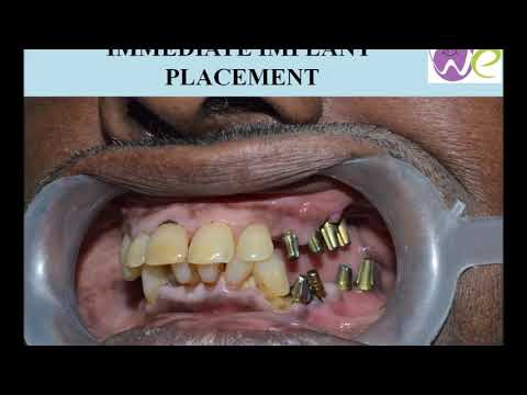 Dental implant success stories by Dr.Arshad the top dentist in coimbatore