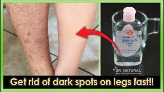 How to get rid of Dark spots, Scar, Mosquito Bites, Hyperpigmentation on legs fast.