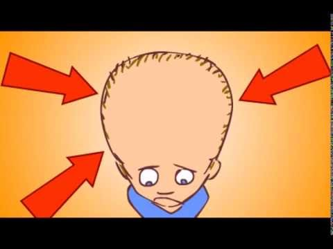Włosy na męskiego owłosienia wypaść
