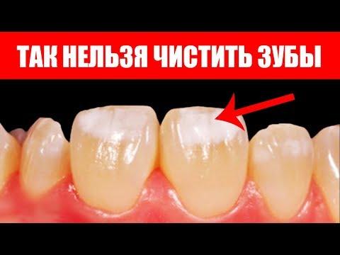 Как отбелить зубы в домашних условиях содой. Польза и вред