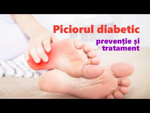 Glucozamina și condroitina beneficiază pentru organism