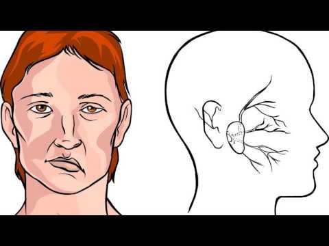 Микроинсульт первые симптомы