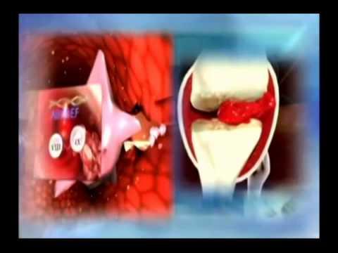 ลิ่มเลือดอุดตันหลังจาก safenektomii