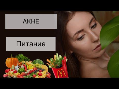 АКНЕ и Еда. Так ли важно питание? Часть 2-ая.
