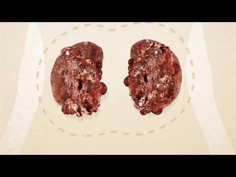 Behandlung von Gelenken ASD Bruch